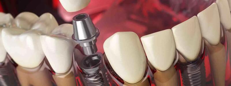 Implant model