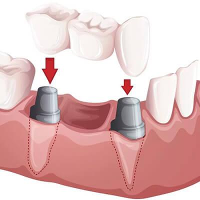 Model - implant zębowy
